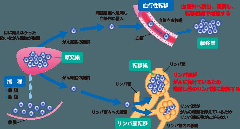 転移と再発|がん先端治療|遺伝...
